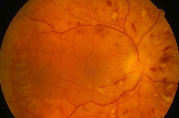 La retinopatia ipertensiva: definizione e diagnosi
