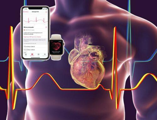 Apple Watch  e Fibrillazione atriale: sempre affidabile?