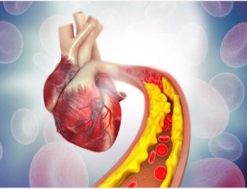 """Vivere con uno """"stent"""" al cuore"""