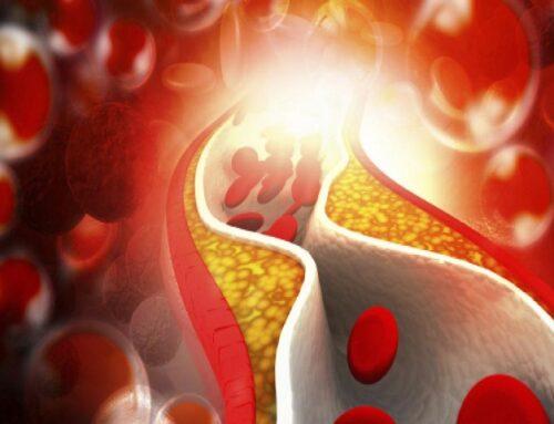 Acido bempedoico: giù il colesterolo, il prima possibile!