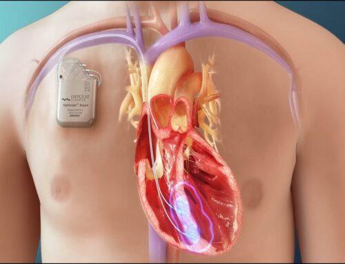 CCM: rivoluzionario dispositivo per lo scompenso cardiaco