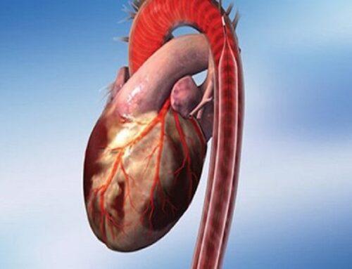 IL CONTROPULSATORE AORTICO (IABP – Intra-Aortic Baloon Pump)